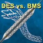 Drug Eluting Stents vs. Bare Metal Stents