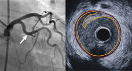 Angiography vs. IVUS image of plaque disruption