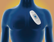 Medtronic's SEEQ™ Mobile Cardiac Telemetry (MCT) System