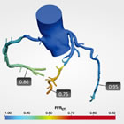 HeartFlow FFRct 3D Analysis