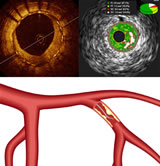 OCT, IVUS and FFR