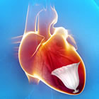 Novel catheter-based treatment for heart failure begins U.S. trial