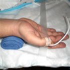 transradial access