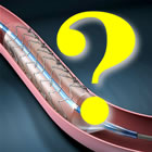 Questions about stents