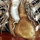 Cardiac CT 3D image
